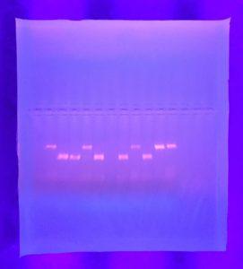 PCR and gel electrophoresis results SA 2016