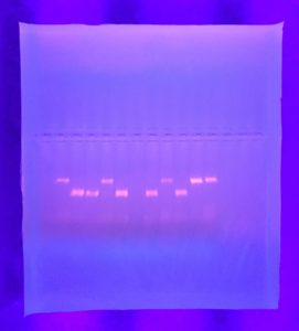 PCR and gel electrophoresis results SA 2016