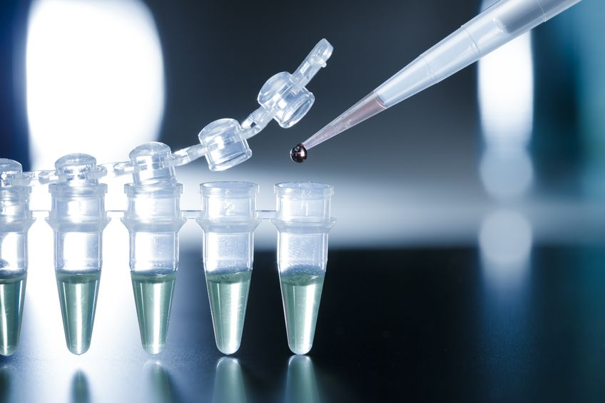 This checklist and free tool will ensure PCR primer design success